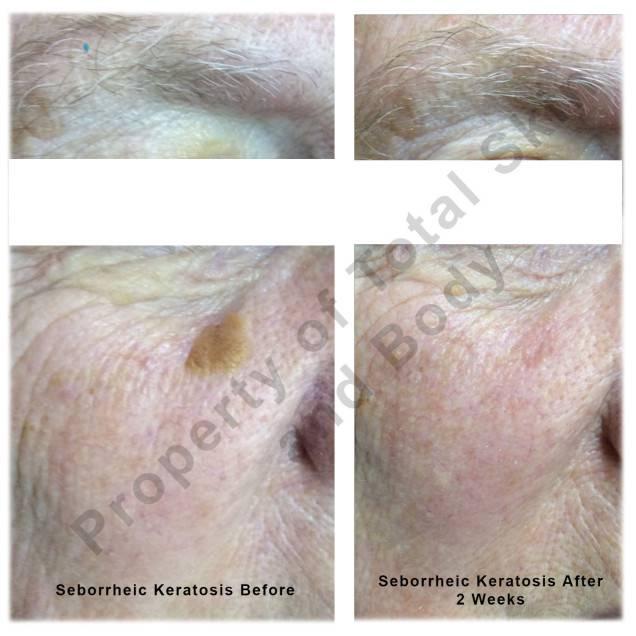 Total Skin Body Anti Aging Spa Kitchener On