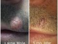 mole1web